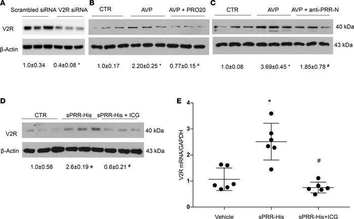 PRR-mediated AVP upregulation of V2R expression in primary rat IMCD cell...