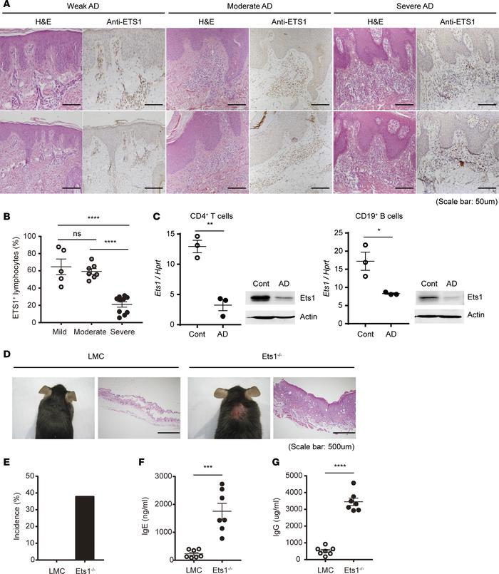 Ets1 expression is significantly reduced in skin lesion of severe AD pat...