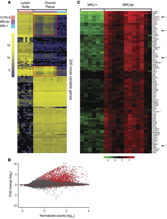 Enhanced expression of lymphoid tissue inducing molecules in lupus CP. (...