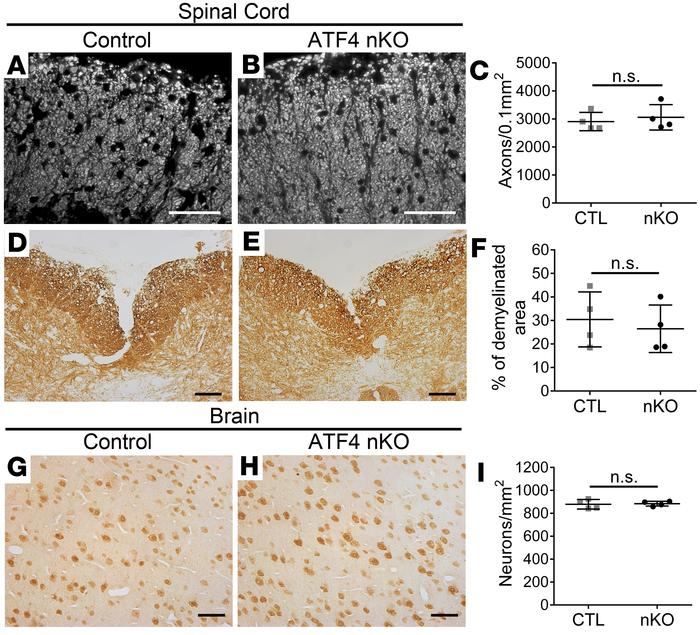 Neuron-specific ATF4 did not affect axon loss, demyelination, or neuron ...