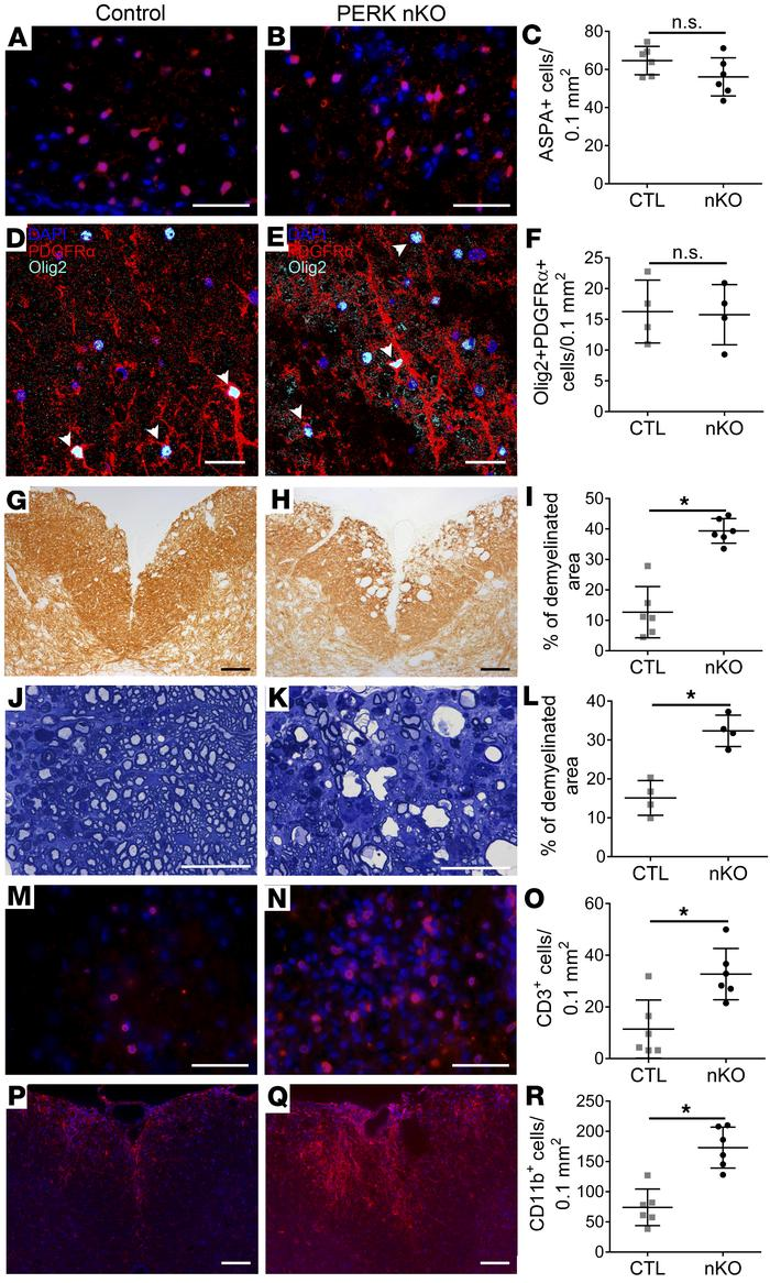 Neuron-specific PERK inactivation increased demyelination and inflammati...