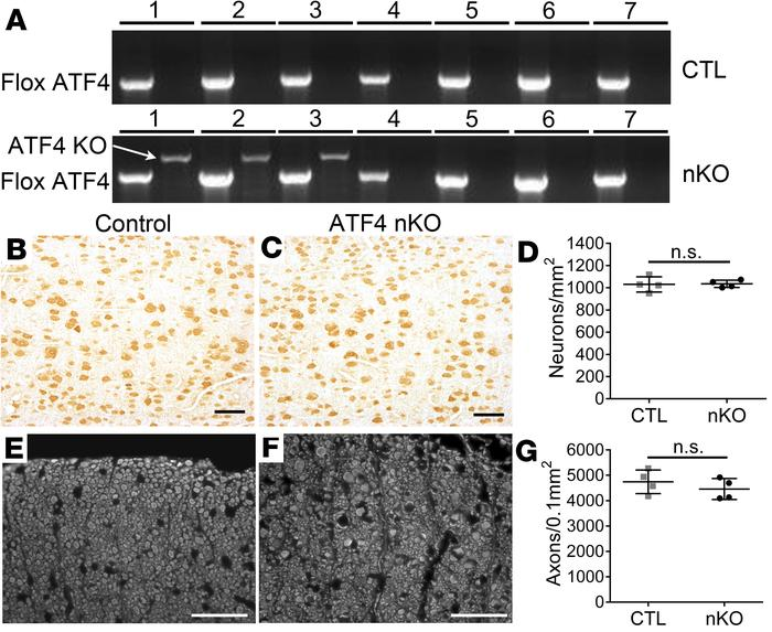 Neuron-specific ATF4 inactivation did not alter the viability of neurons...