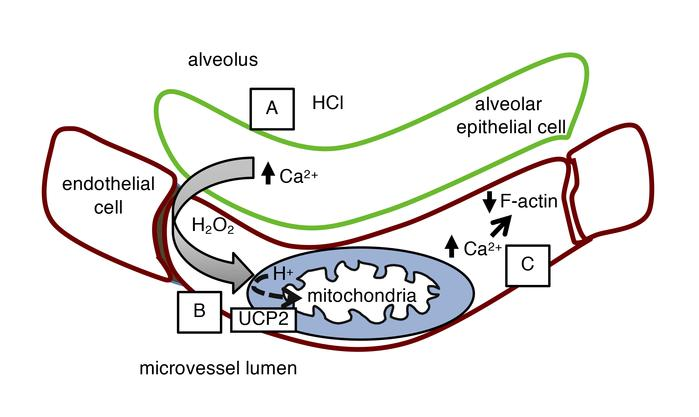 Proposed sequence of events in early alveolar HCl–induced endothelial hy...
