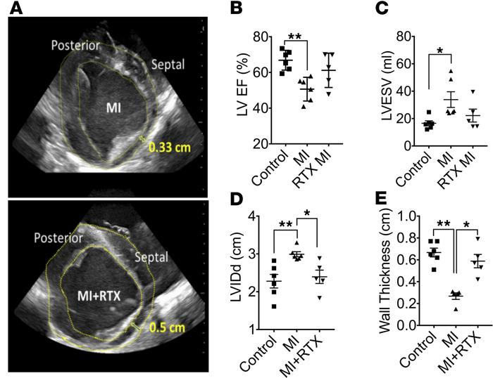Cardiac TRPV1 depletion normalizes cardiac function after MI. (A) Repres...