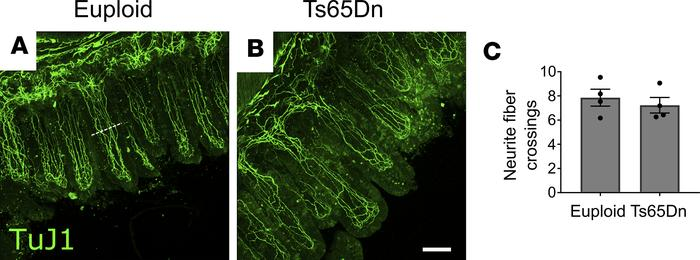 Neurite density within villi is normal in trisomic mice. (A and B) Repre...