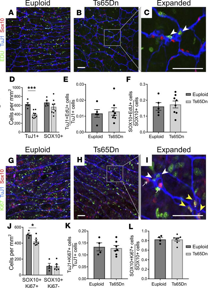 Neuronal and glial precursor proliferation were normal in Ts65Dn mice. (...