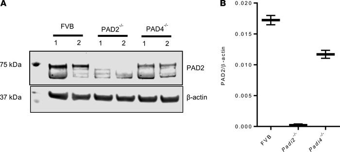 PAD2 expression in murine CD4+ T cells. (A and B) Splenocytes isolated f...