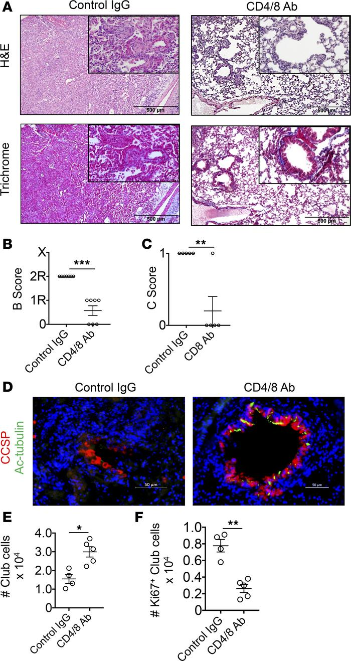 Pan–T cell depletion inhibits OB and promotes club cell regenerative res...