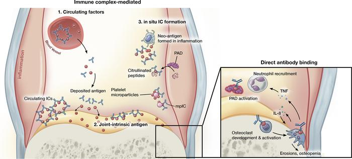 Antibody-mediated mechanisms of inflammatory arthritis. Joint inflammati...