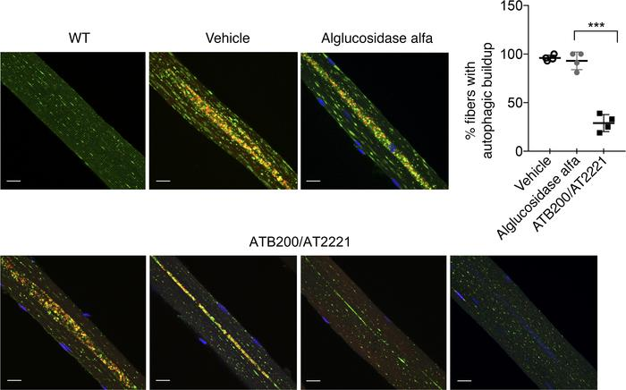 ATB200/AT2221 alleviates autophagic buildup in muscle from Gaa-KO mice. ...