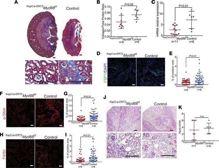 Epithelial cell–specific deletion of Myd88 after injury reduces fibrosis...
