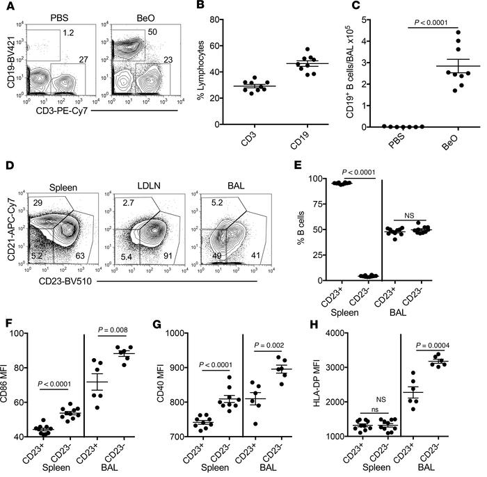 B cell accumulation and activation in the lungs after BeO exposure in FV...