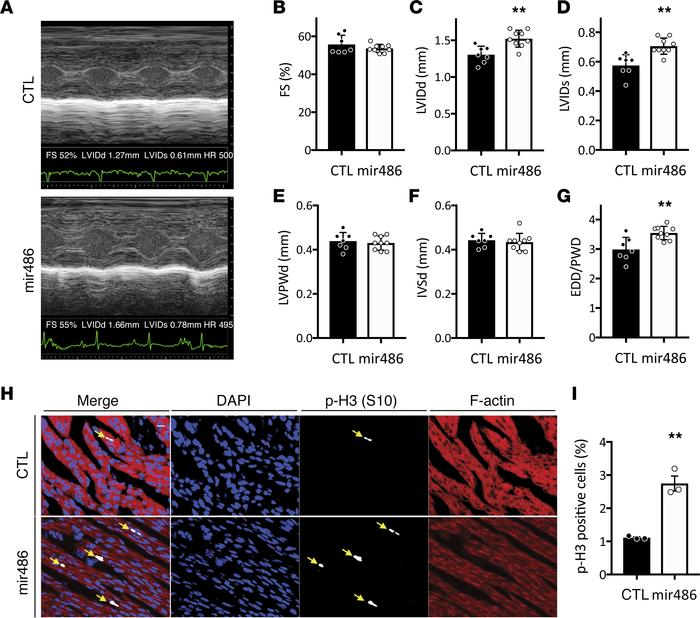 miR-486 is sufficient to increase left ventricular growth and cardiomyoc...