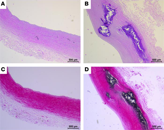 Histology of human arteries. Representative images of H&E staining (...
