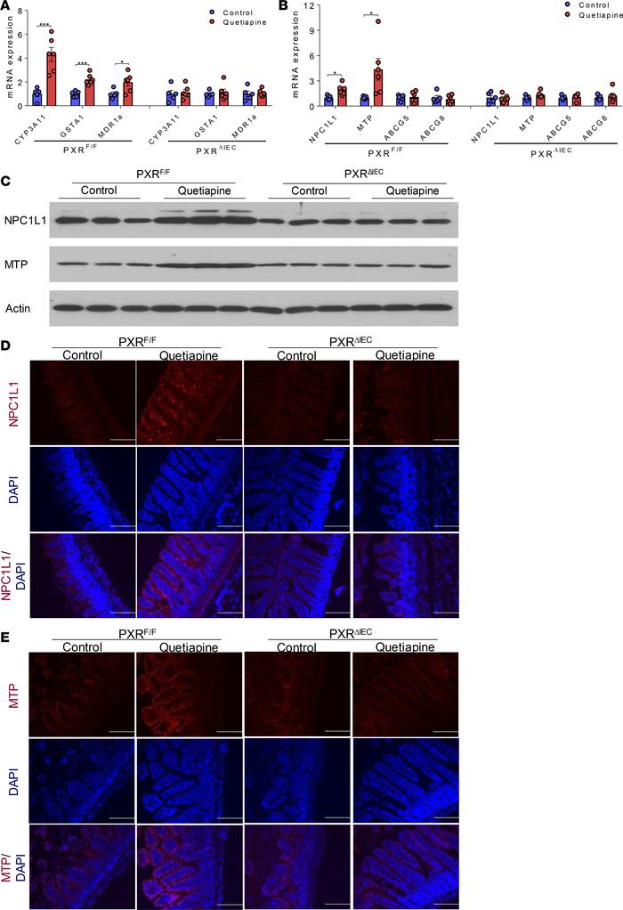 Quetiapine-mediated PXR activation stimulates NPC1L1 and MTP expression ...