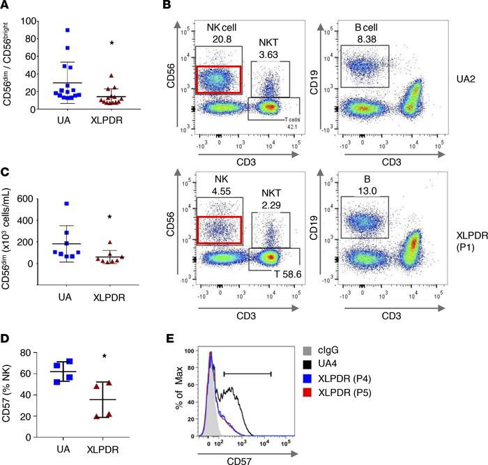 POLA1 deficiency affects NK cell maturation and direct cytotoxicity. (A)...