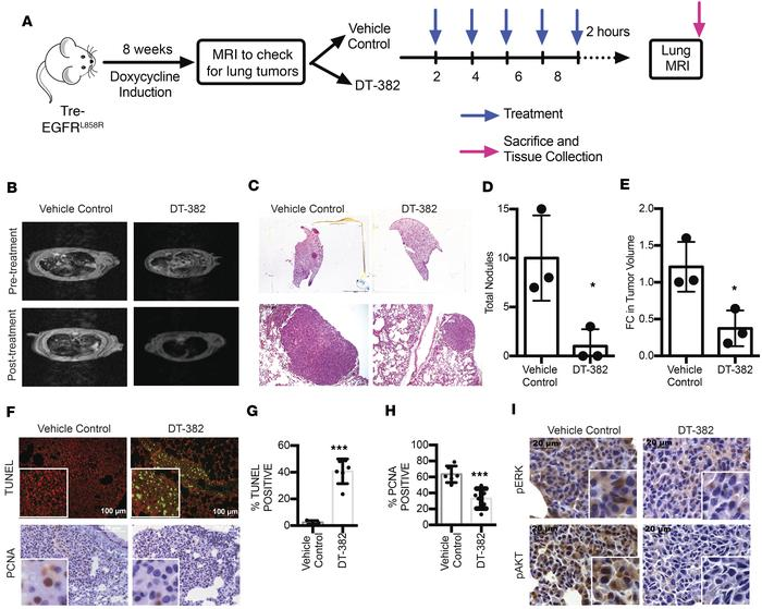 PP2A activation inhibits lung tumor development in an EGFR-driven TKI-se...