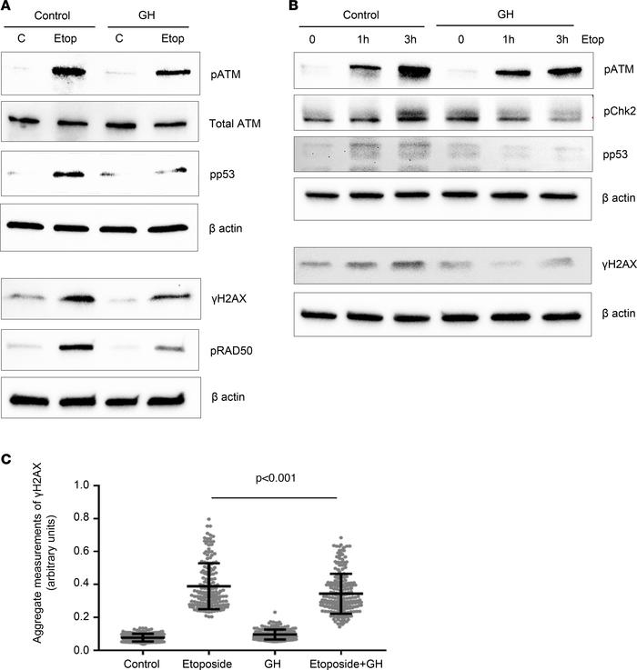 GH suppresses etoposide-induced DNA damage response (DDR) and increases ...