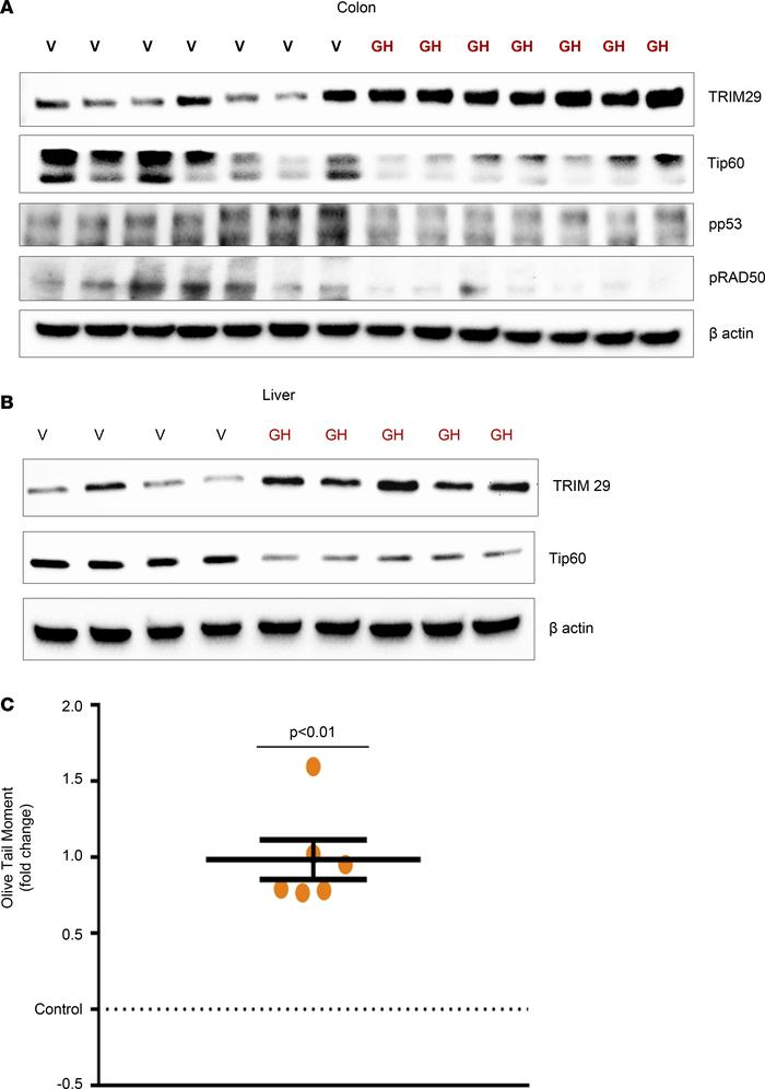 GH suppresses endogenous DDR via the TRIM29/Tip60 pathway in vivo. (A–B)...
