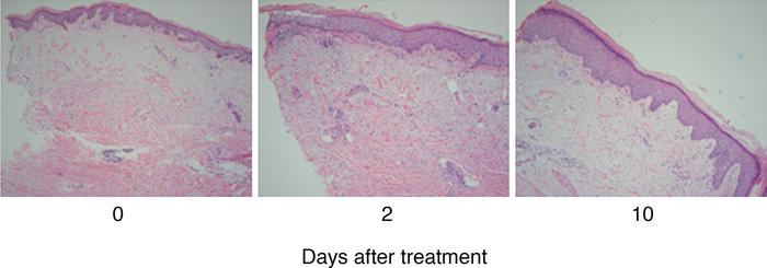 Resolution of the AK lesion following topical ingenol mebutate applicati...
