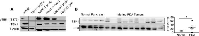 TBK1 is highly expressed in pancreatic cancer. (A) Total and p-TBK1 (S17...
