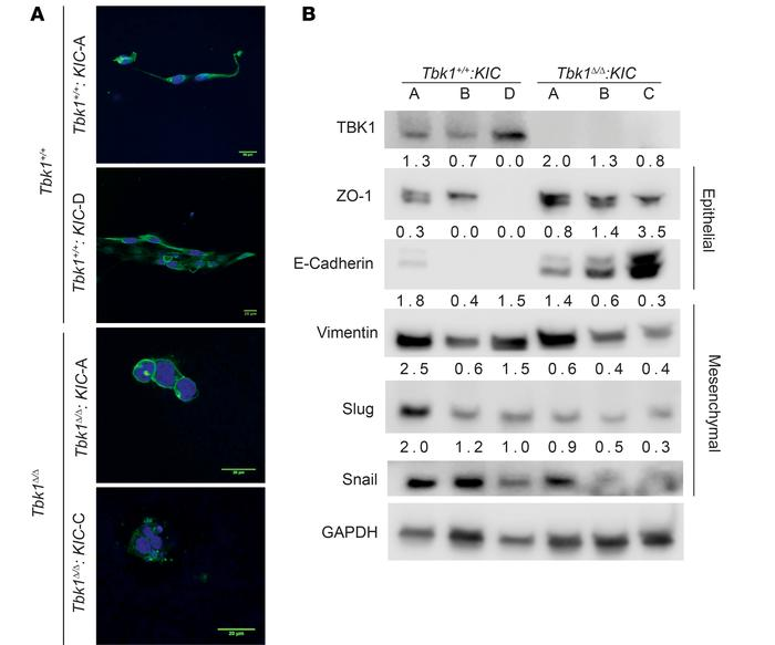 Tbk1 promotes pancreatic cancer epithelial plasticity. (A) Representati...
