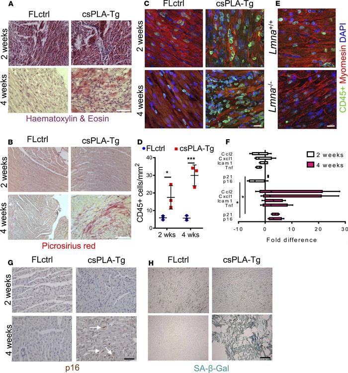 Fibrotic remodeling of csPLA-Tg myocardium occurred in tandem with infla...