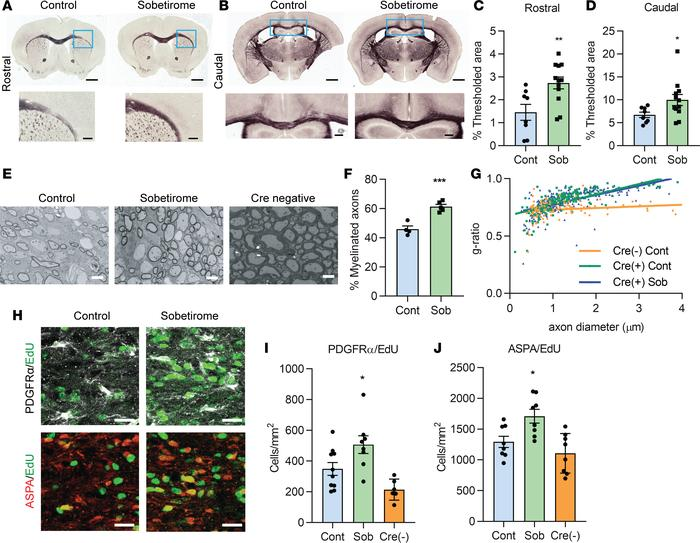 Sobetirome hastens myelin recovery and oligodendrocyte maturation in iCK...