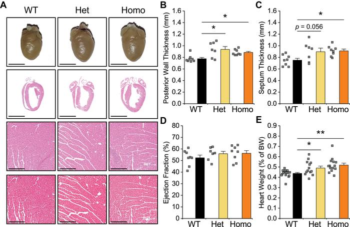 Cardiac hypertrophy in 1-year-old P1124L mice. (A) Representative images...