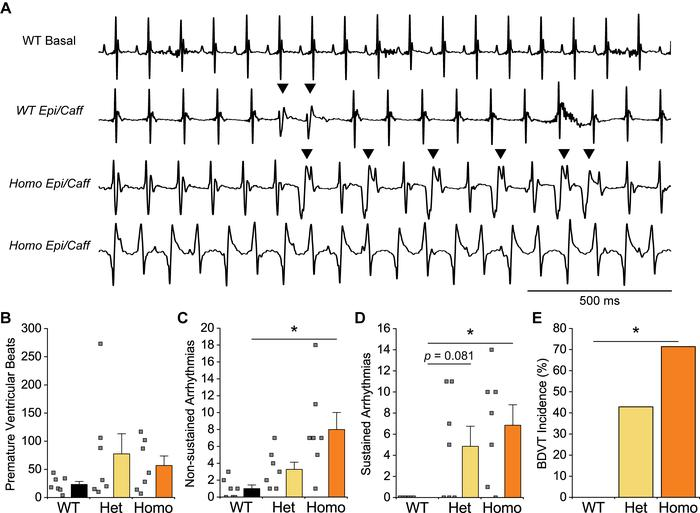 Susceptibility to ventricular arrhythmia in P1124L mice challenged with ...