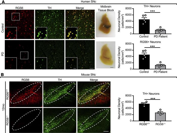 RGS6 is exclusively expressed in dopaminergic TH+ neurons in the SNc of ...