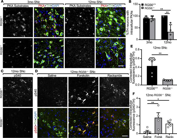 RGS6 loss results in increased D2R-Gi/o signaling in SNc DA neurons in m...