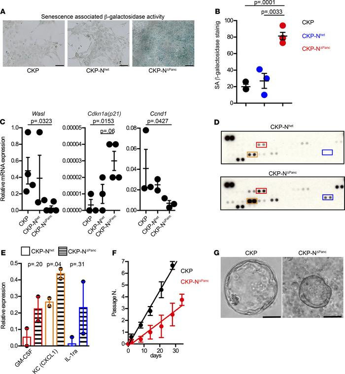 Primary tumor cells isolated from CKP-NΔPanc mice have a senescent pheno...