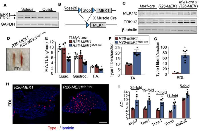 Constitutive active MEK1 expression leads to an increase in type I fiber...
