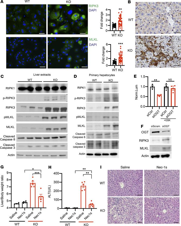 OGT deletion induces the expression of RIPK3 and MLKL in primary hepatoc...