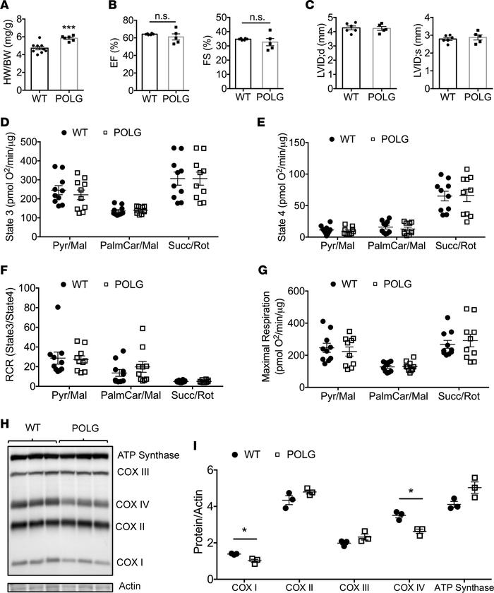 Characterization of cardiac and mitochondrial functions in WT and POLG m...