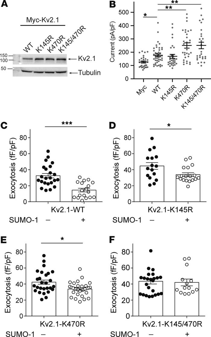SUMOylation sites on the Kv2.1 N- and C-termini control β cell exocytosi...