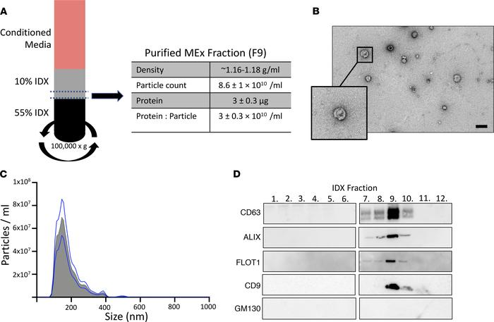 Exosome isolation, purification, and characterization. (A) Concentrated ...