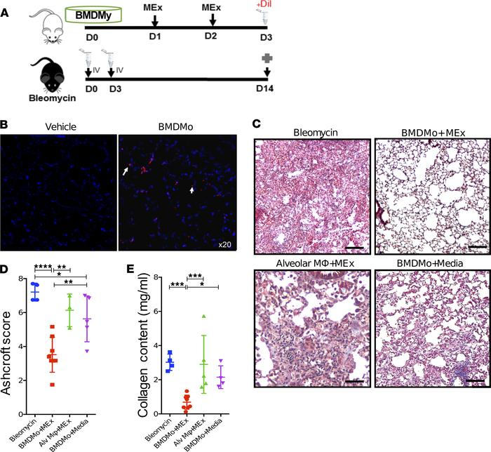 Transplantation of BM-derived monocytes preconditioned with MEX prevents...
