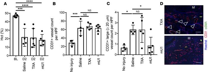 Inhibition of uPA prevents vascular remodeling in hemophilic mice after ...