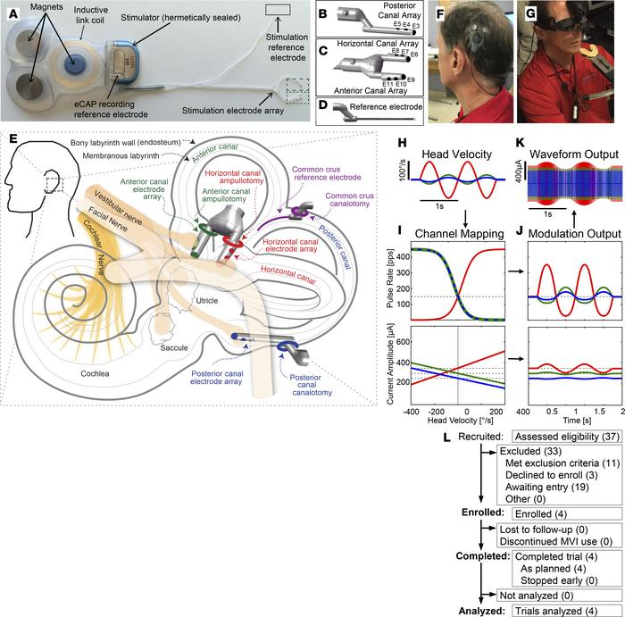 Overview of the Labyrinth Devices MVI and study. (A) The MVI stimulator ...