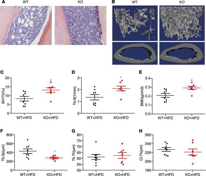 Deleting kindlin-2 in adipocytes causes high bone mass in KO mice. (A) H...