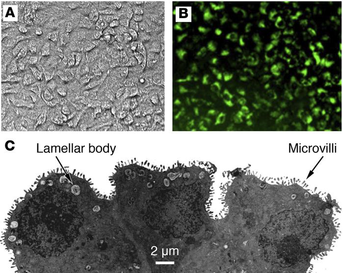Primary human ATII cells grown on a collagen I–coated Transwell membrane...