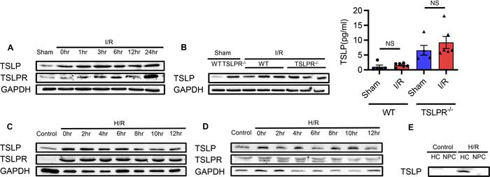 TSLP and TSLPR protein expression increase after liver I/R injury in viv...