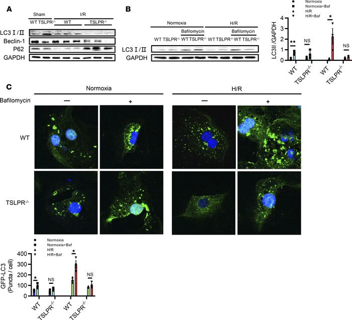 TSLP induces autophagy in vivo and in vitro. (A) Western blot showing th...