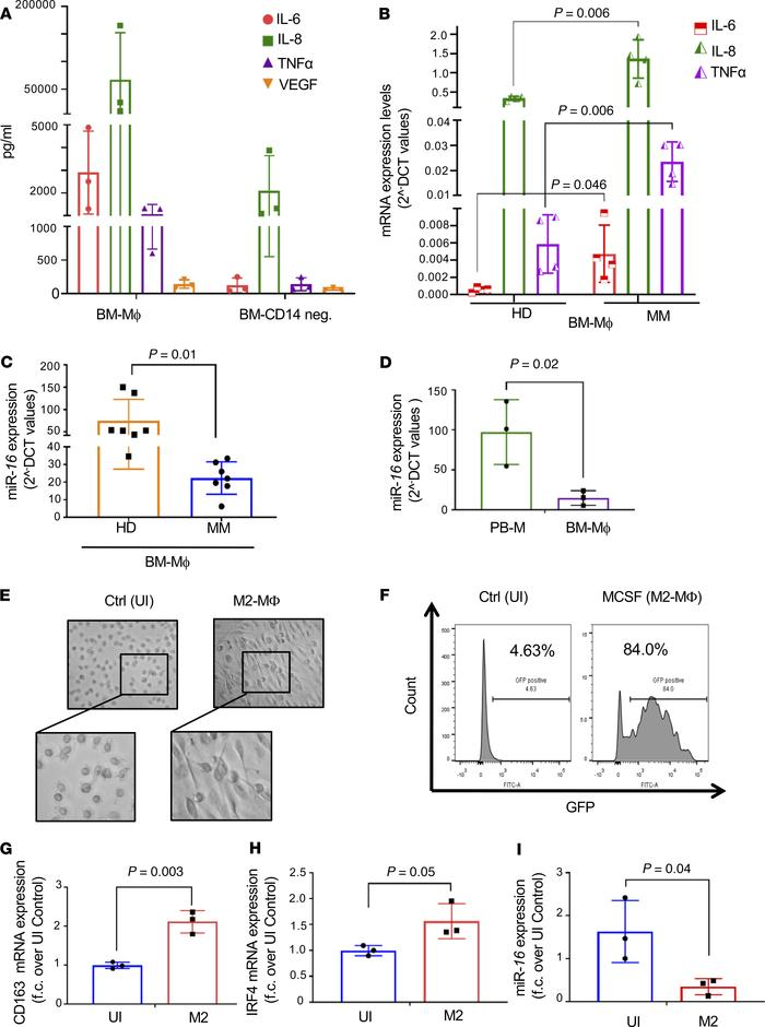 MiR-16 is downregulated in the BM-MΦ of MM patients (A) Cytokine array s...