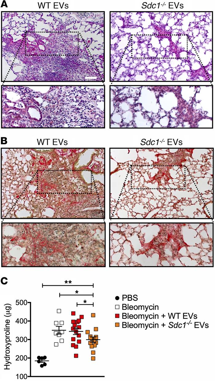 Syndecan-1 dependence of EVs in modulating lung fibrosis. WT mice were i...
