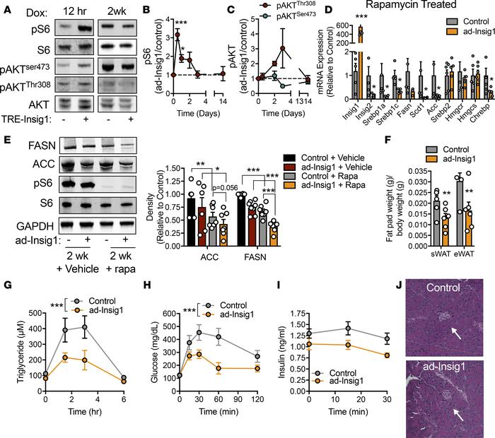 mTORC1 is activated in response to a block in AT lipogenesis. (A) Repres...