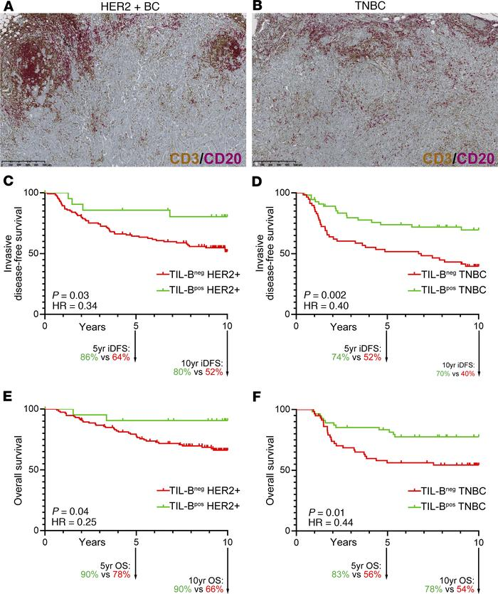 Prognostic value of tumor-infiltrating B cells in breast cancer. (A and ...