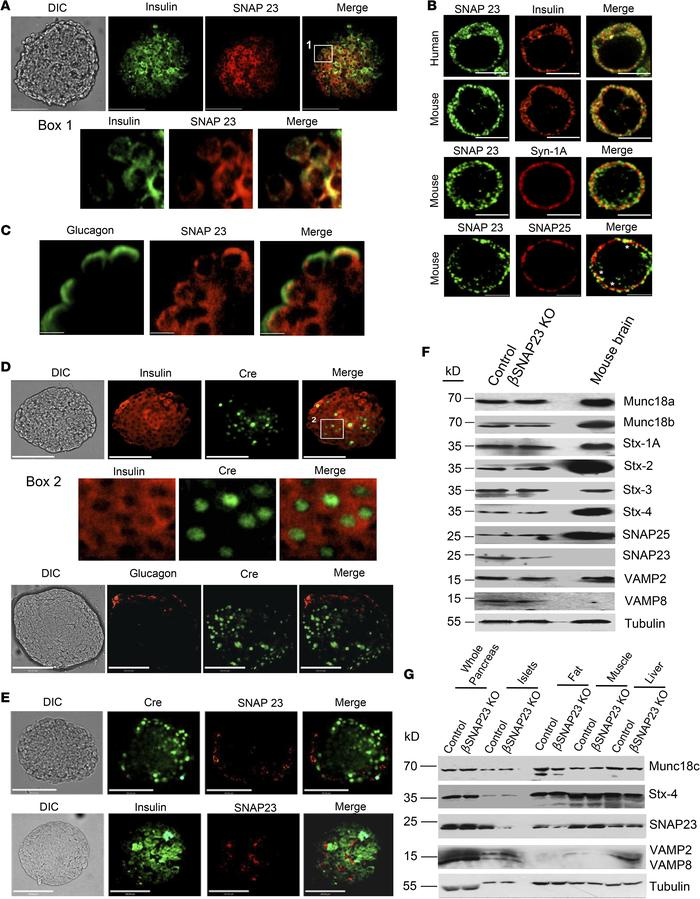 Generation of a mouse with β cell–specific deletion of SNAP23. (A) Whole...